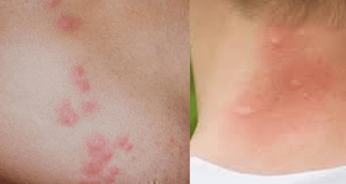 Bed Bug Bites (Left), Mosquito Bites (Right)